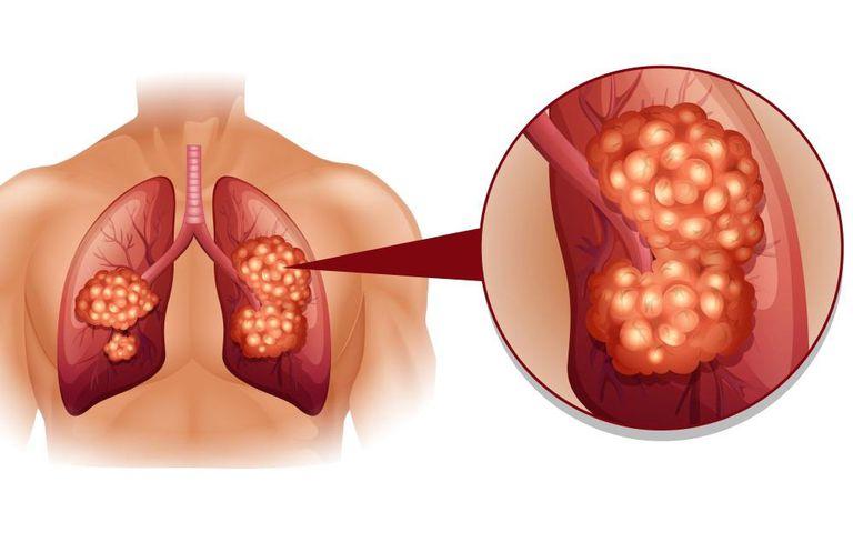 Ung thư phổi, gan di căn theo những con đường nào?