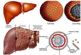 Điều trị viêm gan C hết bao nhiêu tiền