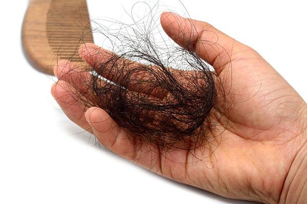 Xử lý rụng tóc, tóc mỏng khi sử dụng thuốc điều trị ung thư