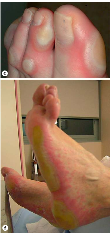 Hội chứng bàn tay bàn chân khi sử dụng thuốc điều trị ung thư- cách xử trí