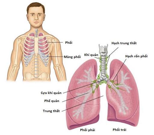 Ung thư phổi không phải tế bao nhỏ là gì?