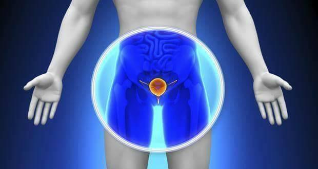 Ung thư tuyến tiền liệt là gì? các loại ung thư tuyến tiền liệt